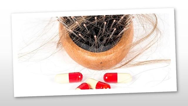 Táplálék-kiegészítőkkel hajhullás ellen?